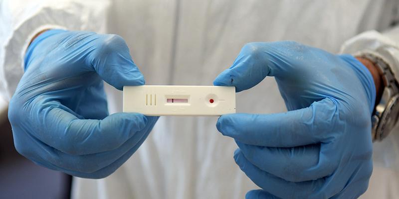 test-sierologico-coronavirus